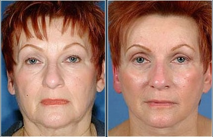 Face Lift Before & After Photos