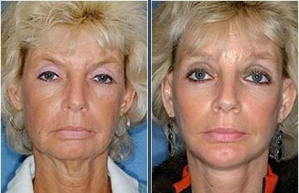 Enlargement - Saline Before & After Photos